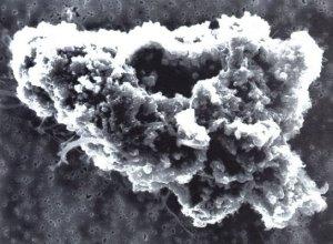 Comet_dust_microscopic_photo